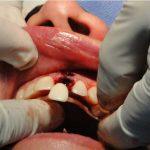 잇몸뼈가 없다? 인천 치조골이식수술 잇몸뼈이식 임플란트 치과!