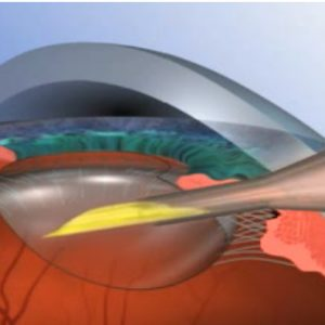 백내장 수술과정 및 백내장 수술 종류