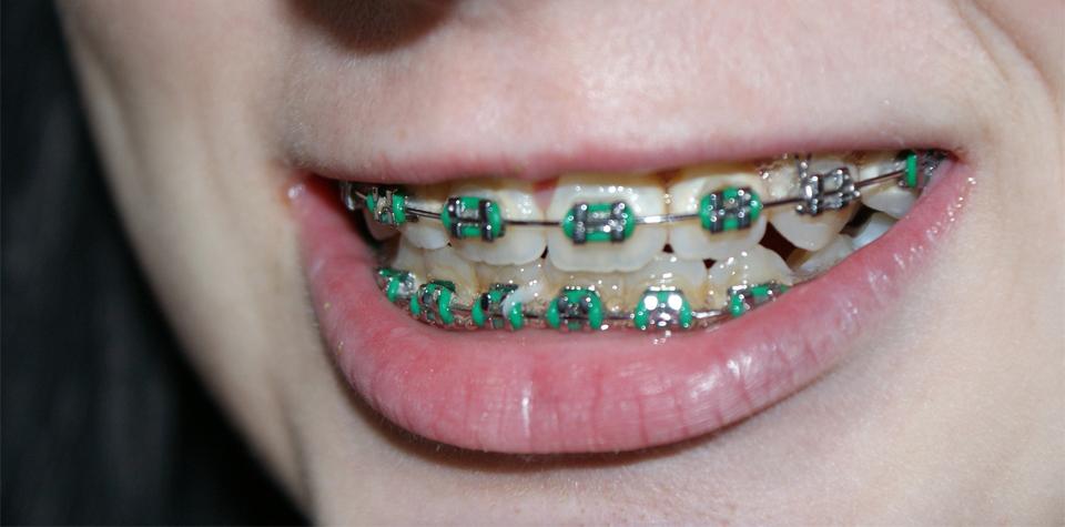 치아교정-치과